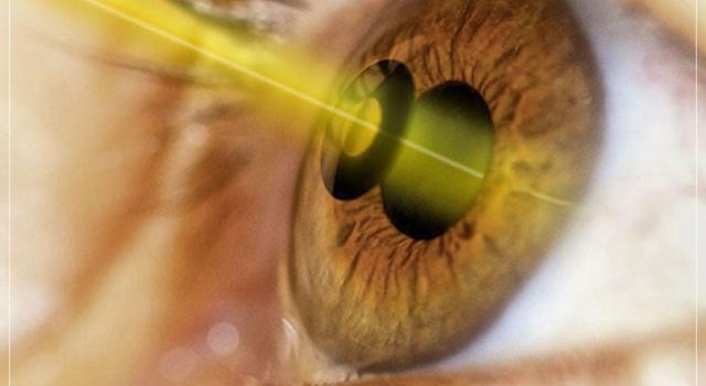 Os principais benefícios da cirurgia refrativa a laser