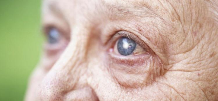 5 Sintomas de catarata no olho